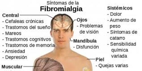 La fibromialgia explicada por el Dr. Bellver hoy en La Mañana